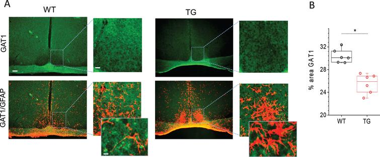Immunohistochemical analyses of GABA transporter 1 (GAT1) in SCN of Tg2576 (TG) and wild-type (WT) mice. A) Representative confocal images of GAT1 and overlayed images of GAT1 with GFAP stained sections through SCN of TG and WT mice. Scale bar, 250μm (first and third column); 60μm (second and fourth column) and 20μm (in magnifications). B) Quantitative analysis of GAT1 staining in SCN of 18 months old WT and Tg2576 (TG) mice (n=6 per group). *p<0.05.
