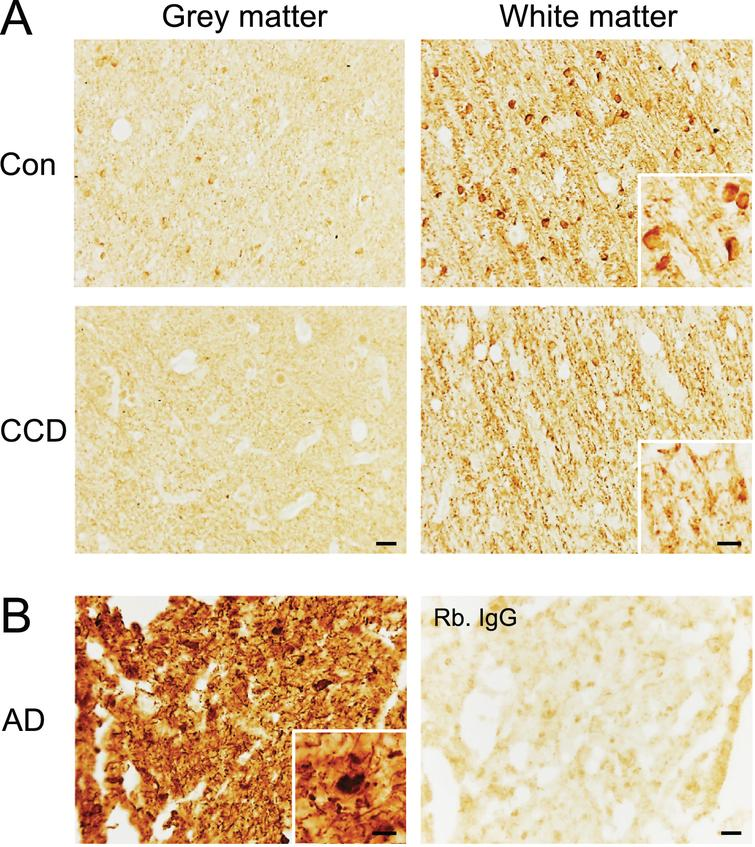 Phosphorylation of the S396 phospho-epitope of tau in white matter in the frontal cortex of CCD and control dogs. Sections of frontal cortex from CCD and control dogs (A) and AD patients (B) stained for S396. A) Phosphorylation of S396 tau was observed as a fiber-staining in the subcortical white matter, while a fainter signal was observed in the grey matter. A dense signal also observed was oligodendrocyte-like cells (inserts) in some dogs. Rabbit IgG controls shown in Supplementary Figure 4 were blank. B) Hyperphosphorylated S396 tau in AD grey matter showing typical neuropil threads and NFTs (insert). Rabbit IgG is almost blank. AD, Alzheimer's disease; CCD, Canine cognitive dysfunction; Con, control. Scale bars: 20μm (inserts: 10μm).