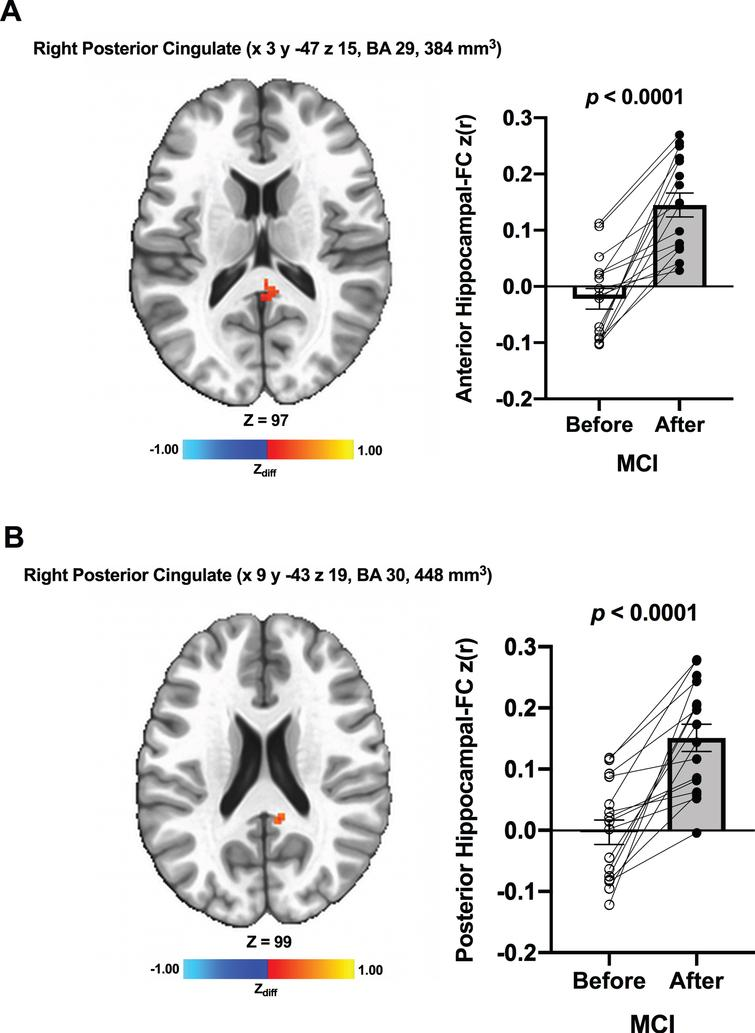 Increased functional connectivity between (A) the anterior hippocampal seed and (B) the posterior hippocampal seed and region within the right posterior cingulate, respectively, were found from before to after ET in individuals with MCI. Adjacent bar graphs indicate the connectivity between each hippocampal seed and right posterior cingulate (±SEM) for before and after ET. p-values above bar graphs indicate statistical difference from before to after ET.