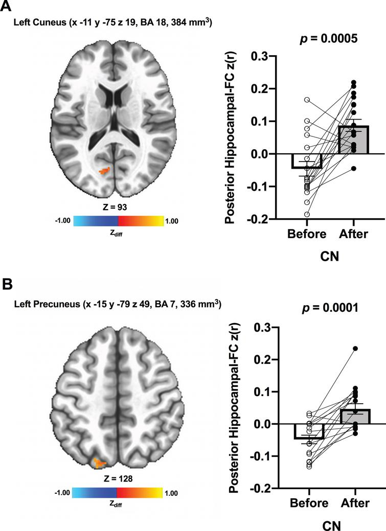 Increased functional connectivity between posterior hippocampal seed and (A) left cuneus and (B) left precuneus, respectively, were found from before to after ET in CN individuals. Adjacent bar graphs indicate the connectivity between each hippocampal seed and right posterior cingulate (±SEM) for before and after ET. p-values above bar graphs indicate statistical difference from before to after ET.