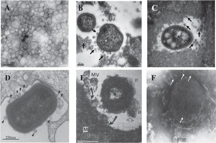 """Secretion of OMVs in situ from A. baumanniiduring in vitro culture and in vivo infection. A) Transmission electron micrograph of OMVs prepared from A. baumannii ATCC 19606T cultured in LB broth for 24h. B, C) Secretion of OMVs from A. baumannii ATCC 19606T in a murine pneumonia model. Mice were infected with 16107 CFU of bacteria intratracheally and sacrificed 48 h after bacterial injection. Arrows indicate the OMVs secreted from A. baumannii. D) TEM image of P. gingivalis entering human epithelial cell and producing numerous OMVs (arrowheads). E) TEM of human Salmonella organism bearing periplasmic organelles (p, line arrow) on its surface and releasing bacterial outer membrane vesicles (MV) being endocytosed (curved arrow) by macrophage cell (M) in chicken ileum in vivo. F) Meningococcus cell in plasma of acute meningitis patient showing blebbing of numerous outer membrane vesicles with a blood level of LPS of 1700 endotoxin units/mL or approx. 170ng/ml of purified E. coli LPS (65,000X mag.) Panels A-C are reprinted with permission from Jin JS, Kwon SO, Moon DC, Gurung M, Lee JH, Kim SI, Lee JC (2011) Acinetobacter baumannii secretes cytotoxic outer membrane protein A via outer membrane vesicles. PLoS One 6, e17027, under the Creative Commons Attribution License. Panel D is reprinted from Amano A, Takeuchi H, Furuta N (2010) Outer membrane vesicles function as offensive weapons in host-parasite interactions. Microbes Infect 12, 791–798, with permission Elsevier. Panel E is reprinted from Wikiwant (https://www.wikiwand.com/en/Membrane_vesicle_trafficking) under the Creative Commons Attribution-ShareAlike 4.0 International License (CC BY-SA). Panel F is reprinted from Namork E, Brandtzaeg P (2002) Fatal meningococcal septicaemia with """"blebbing"""" meningococcus. Lancet 360, 1741, with permission from Elsevier."""