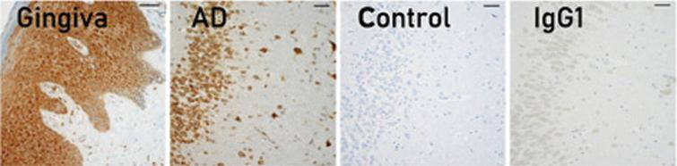 Immunohistochemical localization of gingipains in human gum tissues, AD brain tissues. Adapted with permission from Dominy SS, Lynch C, Ermini F, et al. (2019) Porphyromonas gingivalis in Alzheimer's disease brains: Evidence for disease causation and treatment with small-molecule inhibitors. Sci Adv 5, eaau3333, under the Creative Commons Attribution license (CC BY 4.0).