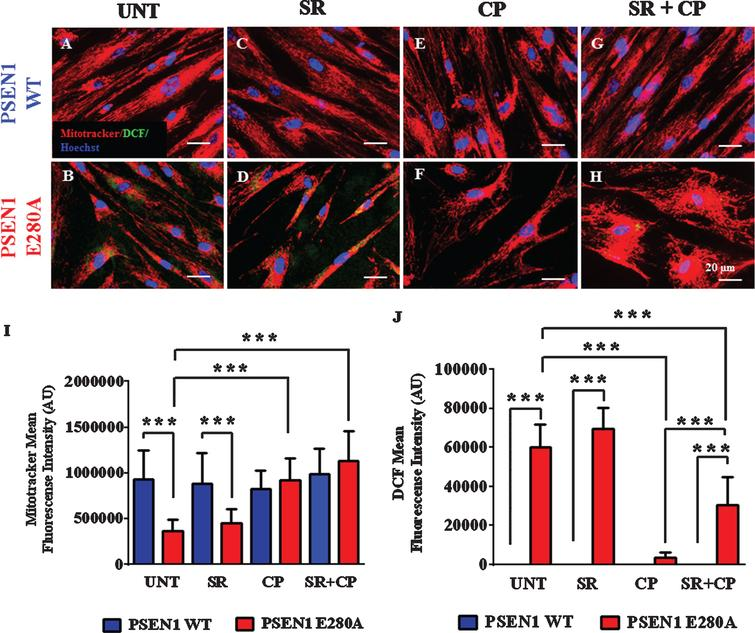 CP55940 augments the Ψm independent of CB1R but reduced the levels of intracellular reactive oxygen species partially dependent on those receptors in PSEN1 E280A ChLNs. After 7 days of transdifferentiation, WT PSEN1 and PSEN1 E280A ChLNs were left untreated or treated with SR, CP, or SR+CP in RCm for 4 days. A-H) Representative MitoTracker/DCF/Hoechst merge pictures of WT PSEN1 and PSEN1 E280A ChLNs treated as described. I) Quantification of MitoTracker fluorescence intensity. J) Quantification of DCF fluorescence intensity. Data are expressed as the mean±SD; *p<0.05; **p<0.01; ***p<0.001. The histograms and figures represent 1 out of 3 independent experiments. Image magnification, 400×.