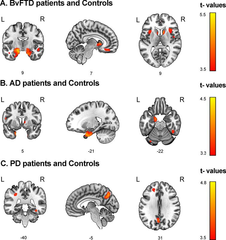 Associations between discriminant scores and gray matter volume. Voxel-based morphometry was conducted to identify brain regions associated with top discriminant scores in each patient group in tandem with demographically-matched controls (p<0.001 uncorrected, extent threshold=30 voxels). A) BvFTD patients and controls. Social cognition and CS (MiniSEA and MoCA) were associated with frontal (gyrus rectus, superior frontal gyrus), temporal (the superior, middle, and inferior temporal gyri, fusiform gyrus, hippocampus, and parahippocampal gyrus), parietal (postcentral gyrus), and insular regions as well as the basal ganglia. B) AD patients and controls. CS (MoCA) results were associated with temporal (hippocampus, amygdala, parahippocampal gyrus, superior temporal, and fusiform gyri), frontal (superior frontal gyrus), and parietal (postcentral gyrus) regions. C) PD patients and controls. Social cognition (MiniSEA) outcomes were associated with parietal (inferior parietal lobule and precuneus), frontal (frontal superior gyrus and anterior cingulate cortex), and temporal (superior temporal and fusiform gyri) regions. AD: Alzheimer's disease; bvFTD: behavioral variant frontotemporal dementia; L, left; PD, Parkinson's disease; R, right.