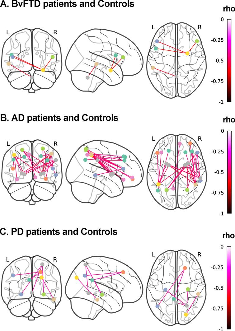 Associations between discriminant scores and functional connectivity. Whole-brain analyses over 116 regions of interest from the AAL atlas were performed to test the association between the FC of each pair of brain areas and top discriminant scores in each patient group in tandem with demographically-matched controls (p<0.001, uncorrected). A) BvFTD patients and controls. Social cognition and CS (MiniSEA and MoCA) outcomes were associated with frontal (inferior frontal gyri/pars triangularis and pars opercularis) and amygdalar networks. B) AD patients and controls. CS (MoCA) results were associated with (a) parietal (parietal superior and inferior lobules, and precuneus and angular gyrus) and frontal (inferior frontal gyrus triangular and orbital, and frontal superior and middle gyri), and (b) parietal superior and inferior lobules, supramarginal gyrus) and basal ganglia (pallidum and putamen) networks. C) PD patients and controls. Social cognition (MiniSEA) results were associated with (a) parietal (parietal superior lobule), temporal (hippocampi) and cerebellar networks, (b) frontal (superior frontal gyrus) and pariental (angular gryus and posterior cingulate) networks, and (c) temporal (inferior temporal gyrus) and occipital (superior occipital gyrus) networks. AD, Alzheimer's disease; bvFTD, behavioral variant frontotemporal dementia; L, left; PD, Parkinson's disease; R, right.