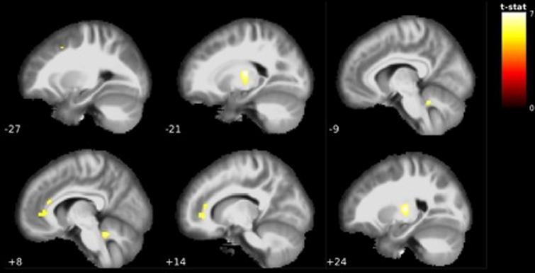 Visualization of grey matter volume reductions in EMCI<CN. Reductions centered around the bilateral ventrolateral thalamus, orbitofrontal cortex, anterior cingulate cortex and cerebellum. MNI coordinate along the x-axis indicated in white. Lighter colors indicate higher t-values (see Table 2).