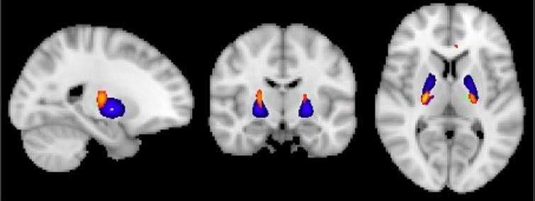 Visualization of GM volume reduction cluster (yellow/orange) in EMCI<CN located in the bilateral ventrolateral thalamus (green/purple) and globus pallidus (blue) according to the Talairach and Harvard-Oxford structural atlas.