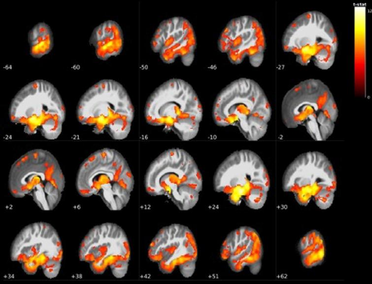 Widespread grey matter volume reductions in LMCI<EMCI. The largest cluster centered around the bilateral mediotemporal gyri, hippocampus, and entire thalamus (see Table 3).