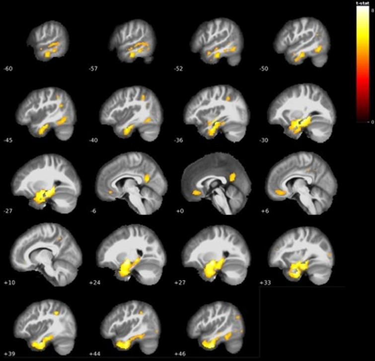 Additional grey matter volume reductions centered mostly around temporal areas in AD dementia<LMCI (see Table 4).