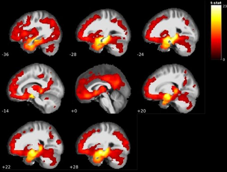 GM volume reductions in temporal, frontal, parietal and cerebellar areas in AD dementia<CN (see Table 5).