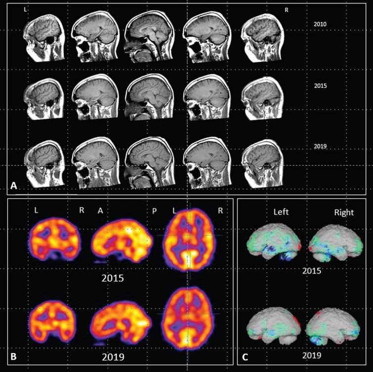 A) Sagittal MRI images acquired in 2010, 2015 and 2019. B) HMPAO-SPECT scan images acquired in 2015 and 2019. C) Rendered images using NeuroGamTM (http://www.segamicorp.com) outputs showing Z scores from the normal range of a control group aged 16 to 45 years with data normalized to cerebellum. Green represents >2 standard deviations below the mean, light blue >3, dark blue >4, black >5. Red represents greater than 2 standard deviations above the mean.