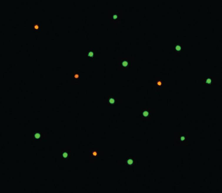 FDA/EtBr viability assay. Cell viability evaluation with the fluorescein diacetate and ethidium bromide differential staining method visualized in fluorescence microscope (magnification 100×). The green labelled cells are metabolically active and the red labelled cells are considered as dead.
