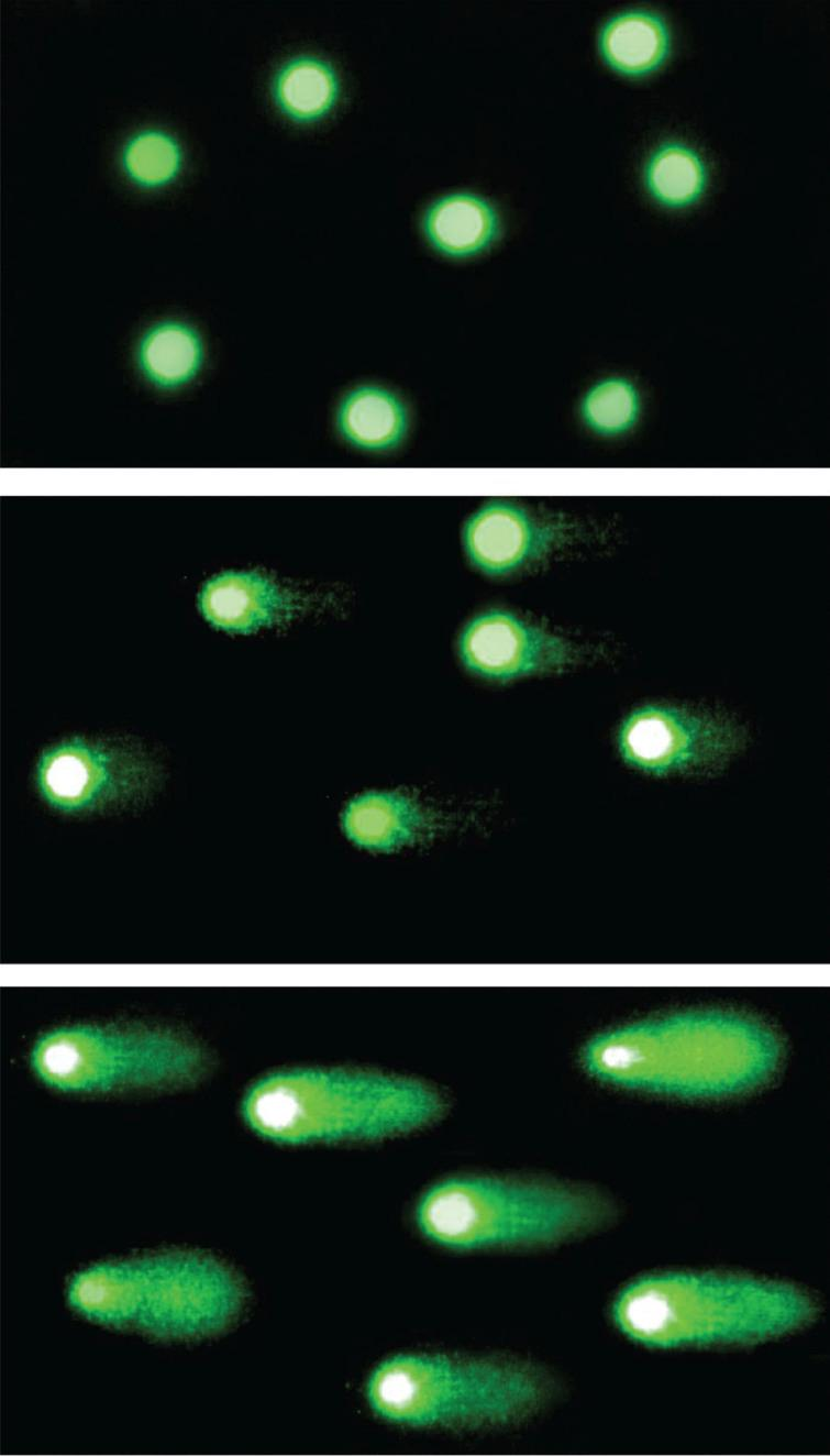 Comet assay. The comet assay visualization in fluorescence microscope in magnification of 200×. The fluorescence intensity of comet tail depends on the amount of DNA damage in nucleus. In the top picture: Nucleoids of not damaged cells; in the middle: Moderate DNA damage; in the bottom picture: Comets of severely damaged cells.