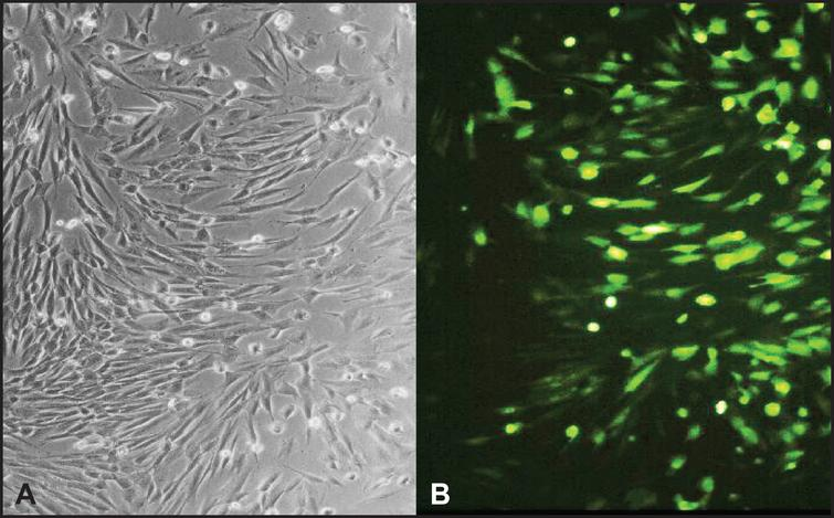 Normal human skin fibroblasts are efficiently transduced by the recombinant adenovirus. Primary fibroblast were transduced with rAdV-PARP-GFP (MOI=25). GFP expression was analyzed by fluorescence microscopy 24h after transduction. Cells successfully transduced expressed a GFP reporter (B). Phase contrast image of the same cells (A).