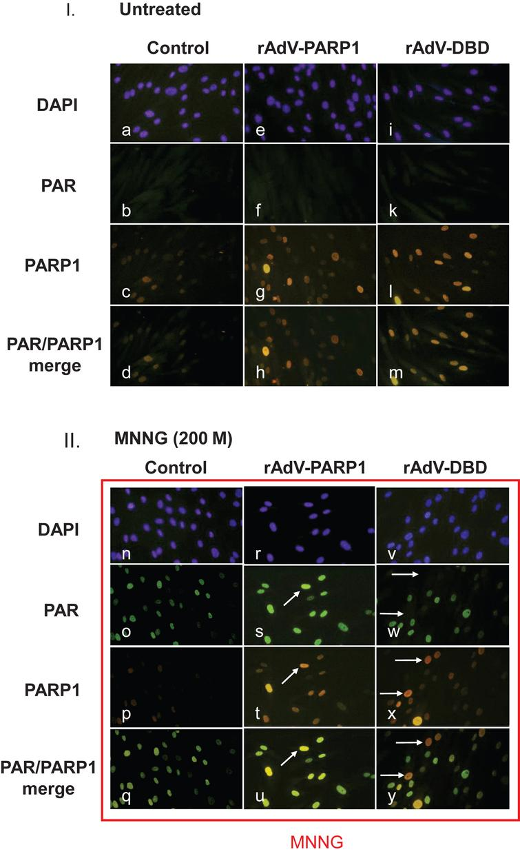Poly(ADP-ribose) formation is altered in cells overexpressing PARP1 and PARP1 DBD. Normal human skin fibroblasts were transduced with rAdV-DBD and rAdV-PARP (MOI=25 each). Twenty-four hours after transduction, cells were treated with 200μM MNNG for 20min. Cells were washed with PBS, fixed with 4% formaldehyde and immunofluorescence staining was performed using a monoclonal antibody (10H) to detect poly(ADP-ribose) (PAR) and a polyclonal rabbit antiserum to detect PARP1. Secondary antibodies used were goat anti-mouse (fluorescein coupled (FITC, green) and goat anti-rabbit (rhodamine-coupled (TRITC, red). DNA was counterstained with DAPI. I. Fibroblast transduced with either rAdV-PARP or rAdV-DBD showed stronger nuclear PARP1 signals (g and l, respectively) than control cells (c). Without exogenously induced DNA damage, no increased PAR formation could be observed in control cells and in PARP1 and PARP1 DBD overexpressing cells (c, f, k). II. After MNNG induced DNA damage, control cells showed strong nuclear poly(ADP-ribose) signals (o). The PARP1 signal in these cells are very strong (p). Therefore the merge of PAR signals and PARP1 signals shows a green nuclear color (q). In cells overexpressing PARP1, the PAR signals (s) were stronger in cells which also showed a stronger PARP1 specific staining (compare arrows in s and t), indicating that a high expression level due to the transduction leads to an increase in PAR formation. In the merged image, these cells appear yellowish, while cells with lower PARP1 expression levels appear greenish (u). In cells which overexpressed the dominant negative DBD of PARP1, cells with strong PARP1 DBD signals (arrows in x) lacked PAR signals (arrows in w). In the merged image (y), these cells therefore appeared red (arrows), while cells without strong DBD signals appeared greenish due to the ADP-ribose polymer signals.