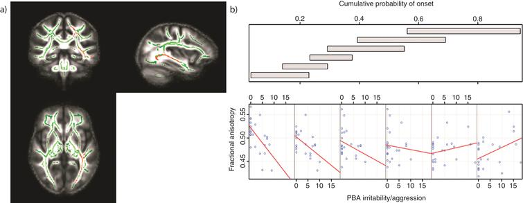 Tracts in which reduced FA was correlated with increased levels of irritability/aggression in those with low CPO; FWE-corrected threshold of P <  0.05. a) Results (red-yellow) are projected on a white matter skeleton (green), overlaid on a customized mean FA image. FA as a function of PBA irritability/aggression (lower scatterplot), conditional on CPO (upper panel). The upper panel depicts the overlapping ranges of CPO that determine the subsample of each scatterplot. A linear regression line was fit for each scatterplot to aid interpretation.
