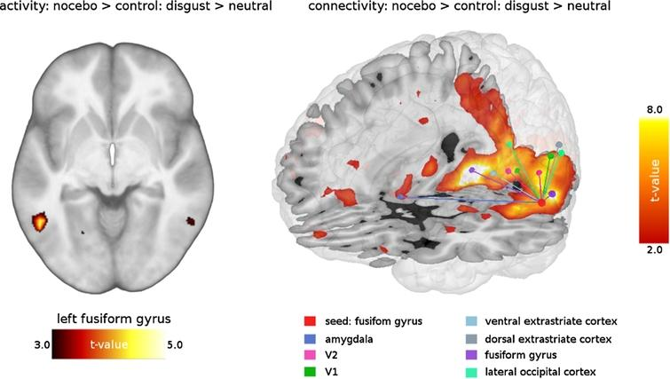 Nocebo-related activity and connectivity of fusiform gyrus during disgust elicitation.