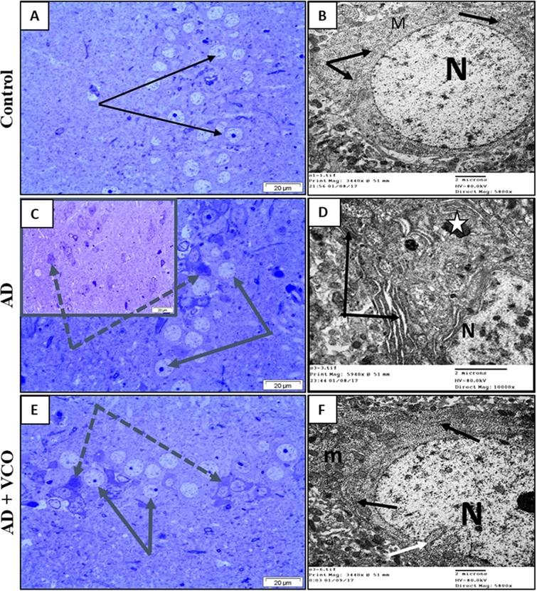 Semi-thin sections and electron-ultramicrographs of rat hippocampi of the three study groups. (A)Control: The semi-thin toluidine blue-stained section shows normal neurons with vesicular nuclei and prominent nucleoli (arrows). (B)Control: electron microscope micrograph shows a normal neuron with euchromatic nucleus (N), healthy cytoplasmic rER (black arrows) and mitochondria (M). (C)AD: Semi-thin sections show shrunken dark-stained neurons (dotted arrows). Cell nuclei are ill-defined, dark and degenerated. Few neurons looked normal with vesicular nuclei and prominent nucleoli (arrows). (D)AD: electron microscope micrograph shows a degenerated neuron with electron-dense cytoplasm and dilated rER depleted from ribosomes (black arrows). Dense bodies (lysosomes) can be seen (white star). The nucleus (N) shows clumped chromatin. (E)AD+VCO: Semi-thin sections show the preservation of normal viable neurons (black arrows). Afew cells looked dark, shrunken and degenerated (dotted arrow). (F)AD+VCO: electron microscope micrograph shows a nearly normal neuron with a euchromatic nucleus (N) and indented envelope (white arrow). The cytoplasm contains normal rER (black arrows) and mitochondria (M). Scale bar=20μm in A, C and E and 2μm in B, D and F.
