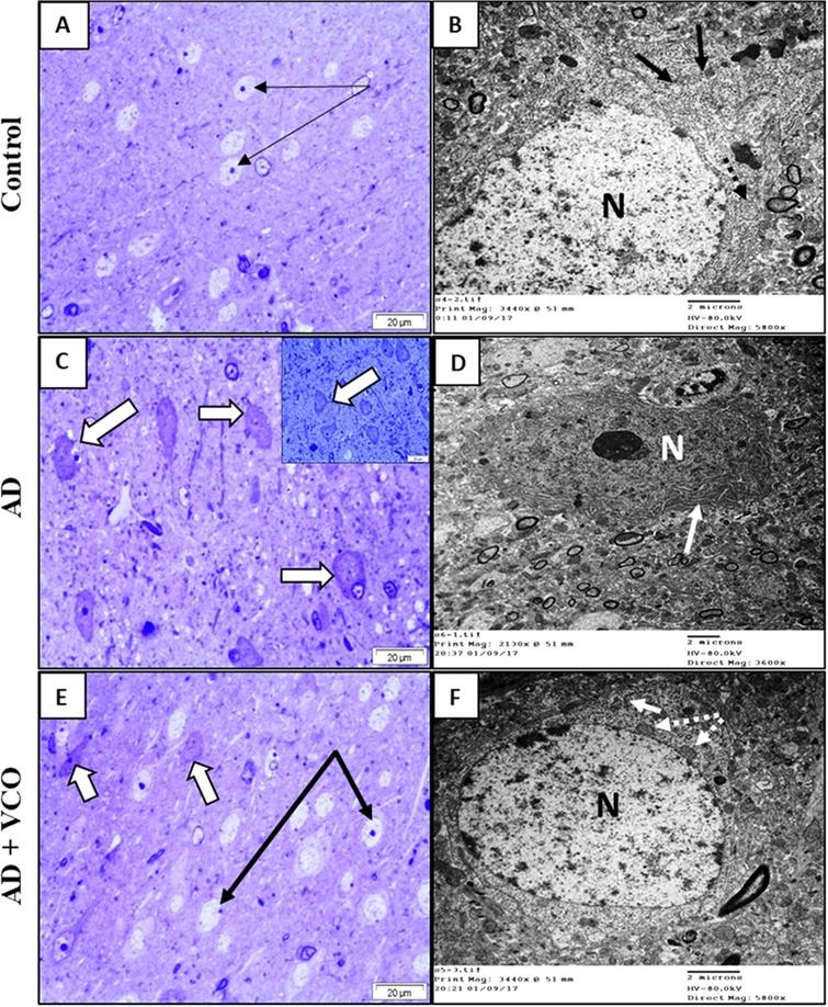 Semi-thin sections and electron-ultramicrographs of rat cerebral cortexes of the three study groups. (A)Control: Semi-thin toluidine blue-stained section shows normal neurons with vesicular nuclei and prominent nucleoli (arrows). (B)Control: electron microscope micrograph shows a normal neuron with euchromatic nucleus (N), healthy cytoplasmic rER (black arrows) and mitochondria (dotted arrow). (C)AD: Semi-thin sections show shrunken dark-stained neurons (white arrows). Cell nuclei are ill-defined, dark and degenerated. (D)AD: electron microscope micrograph shows degenerated neuron with electron dense cytoplasm and dilated rER depleted from ribosomes (white arrow). Nucleus (N) shows clumped chromatin. (E)AD+VCO: Semi-thin sections show the preservation of active neurons (black arrows). Afew cells looked dark, shrunken and degenerated (white arrows). (F)AD+VCO: electron microscope micrograph shows a nearly normal neuron with a euchromatic nucleus (N). The cytoplasm contains normal rER (white arrows) and mitochondria (dotted white arrow). Scale bar=20μm in A, C and E and 2μm in B, D and F.