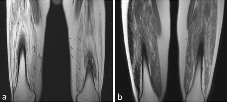 Degree of fibrosis correlates with treatment effect. (a) MRI of quadriceps muscles for the BMD patient with insignificant improvement (distance walked- 9 m on 6MWT) shows a much higher degree of skeletal muscle involvement compared to (b) the BMD subject who had most benefit (distance walked = 108 m on 6MWT).