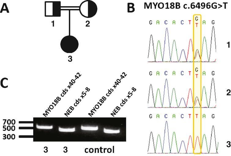 Identification of a homozygous nonsense mutation in MYO18B. A) Pedigree of the consanguineous family. B) Chromatopherograms showing the segregation of the MYO18B c.6496G>T mutation. Both healthy parents (1 and 2) are heterozygous carriers of the MYO18B mutation; the patient (3) is homozygous. C) RT-PCR analysis of skeletal muscle cDNA. The MYO18B amplicon encompassing the MYO18B mutation was detected at comparable levels in the patient and an age-matched control. A NEB amplicon of similar size was used as internal control.