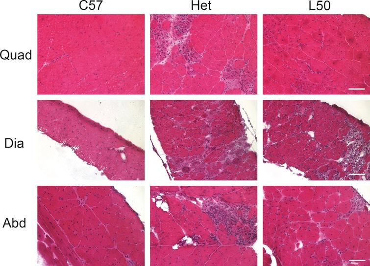 Hematoxylin and eosin stained representative quadriceps, diaphragm and abdominal sections. Het mice treated with 50mg/kg × day of lisinopril had less observable overall muscle damage in quadriceps (Quad), diaphragm (Dia) and abdominal (Abd) sections compared to untreated het mice. As expected, C57BL/10 wild-type control mice had no observable muscle damage in any of the muscle types. C57: C57BL/10 wild-type control mice (n=10); Het: untreated het mice (n=10); L50: het mice treated with 50mg/kg × day of lisinopril (n=6). Bar=100μm.