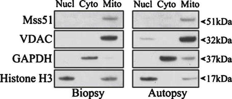 Subcellular localization of MSS51. Subcellular fractionation was performed on human deltoid samples from a biopsy and an autopsy and resulting fractions were subjected to SDS-PAGE. Immunoblotting was performed with the only current antibody specific to MSS51 (anti-human MSS51, Acris Antibodies, San Diego, CA, USA) showing a band in the mitochondrial fraction of the predicted protein product size, 51 kDa. Loading controls were VDAC (mitochondrial), GAPDH (cytoplasmic), and Histone H3 (nuclear).