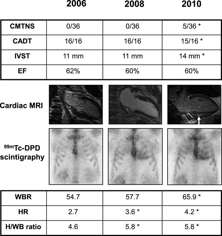 Clinical findings in an asymptomatic Glu89Gln carrier, showing higher sensitivity of 99mTc-DPD scintigraphy in detecting heart involvement. She was followed every two years with neurographic, autonomic and cardiological tests. Asterisk indicates a pathological result. At first control in 2006, at 46 years of age, Charcot-Marie-Tooth neuropathy score (CMTNS), compound autonomic dysfunction test (CADT), inter-ventricular septum thickness (IVST) and ejection fraction (EF) were normal; cardiac MRI and 99mTc-DPD scintigraphy were also normal; the latter showed no significant cardiac uptake (score 0) and normal indexes of semiquantitative analysis (HR, WBR, H/WB ratio; see Materials and Methods). In 2008, CMTNS, CADT, IVST, EF and cardiac MRI were still normal. On the contrary, 99mTc-DPD scan showed a mild cardiac uptake (score 1) confirmed by some pathological semiquantitative indexes. After two years, in 2010, there was a mild peripheral and autonomic nerve involvement at CMTNS and CADT, IVST was increased, cardiac MRI showed a minimal signal hyperintensity (arrow), and scintigraphy worsened to score 2.