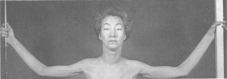 Bilateral ptosis and moderate atrophy of the shoulder girdle and arm muscles (figure reprinted with permission).