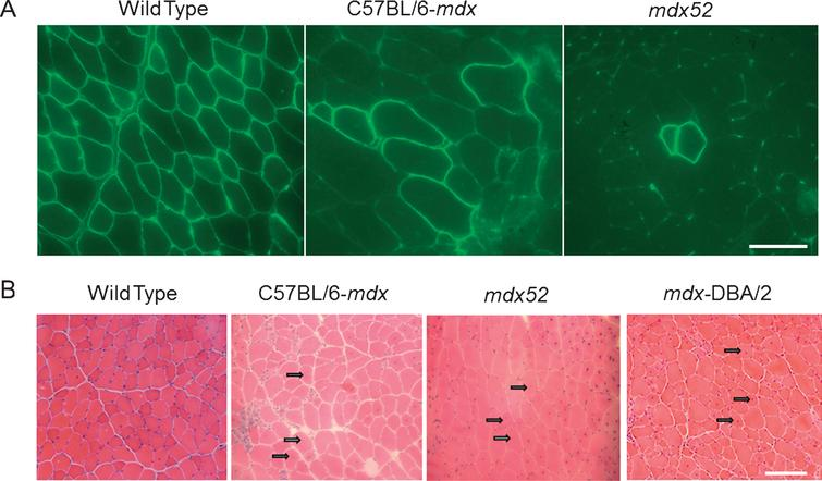 Histology concerning RF expression and CNFs observed in dystrophic mice models of mdx, mdx52 and/or mdx-DBA/2) (A) Mdx52 mice show lower number of RFs in a single cluster than mdx52 mice at 12 months of age. Echigoya et al., 2013 showed that mdx52 has a 58% lower RF expansion than age-matched mdx mice of 12 months. The tibialis anterior (TA) muscles of mdx and mdx52 were immunostained with a rabbit polyclonal antibody against C-terminal domain (position at 3,661– 3,677 amino acids; Abcam, Bristol, UK). Bars = 50μm. (B) Hematoxylin and eosin stained images for TA muscles of mdx, mdx52 and mdx-DBA/2 mice at 2 months of age. Arrows indicate centrally nucleated fibers. Bars = 100μm.