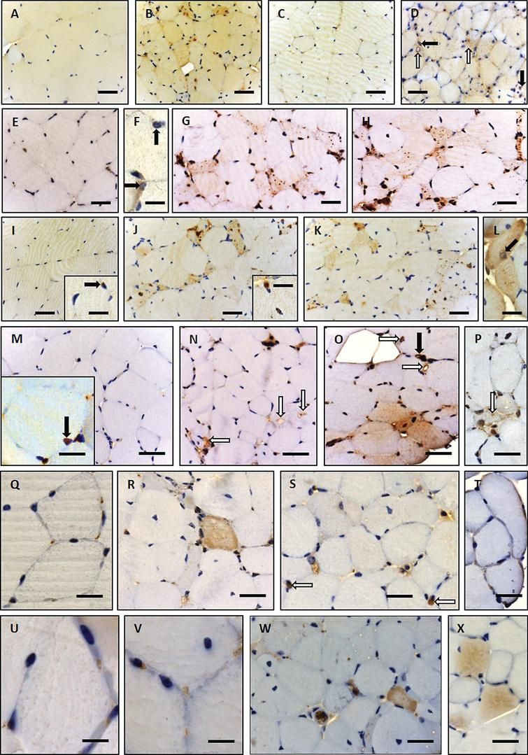 Immunohistochemistry of paraffin sections of paraformaldehyde-fixed quadriceps muscle specimens of 26-week-old wild type (A, C, E, F, I, M, Q and U) and woozy (B, D, G, H, J–L, N–P, R–T, V–X) animals: (A) weak creatine kinase (muscular) immunoreactivity of the sarcoplasm in wild type mouse muscle fibres. Scale bar=22 μm. (B) Muscle fibres of normal size and especially partially atrophic muscle fibres showing increased muscle creatine kinase immunoreactivity. Scale bar=19 μm. (C) Minor DJ-1 immunoreactivity of wild type mouse muscle and enhanced diffuse as well as perinuclear (black arrows) and vacuole-associated (white arrows) DJ-1 immunoreactivity in Sil1-mutant muscle fibres (D). Scale bars=20 μm. (E) Minor diffuse immunoreactivity for the SIL1 binding partner BiP in wild type mouse muscle fibres is showing a sarcomeric pattern which probably corresponds to a labelling of the SR. Scale bar=22 μm. (F) BiP immunoreactivity associated with myonuclei/ nuclear envelope (black arrows) in mouse wild type muscle fibres. Scale bar=10 μm. (G and H) Partially atrophic and atrophic muscle fibres of a woozy animal show strong BiP immunoreactivity of subsarcolemmal and intermyofibrillar deposits, some of which are associated with vacuoles and myonuclei. Scale bars=22 μm. (I) Diffuse immunoreactivity of TDP-43 within the sarcoplasm and occasionally in myonuclei (inset in I) of muscle fibres derived from wild type animals. Scale bar=22 μm; in inset 10 μm. (J–L) In this woozy mouse muscle specimen, enhanced intermyofibrillär punctuate TDP-43 immunoreactivity is accompanied by prominent labelling of the perinuclear region and nuclear membrane (inset in J and L). Scale bars in J and K=22 μm; inset in J=10 μm and L=15 μm. (M) Nuclear labelling after incubation with the LAP2 antibody in wild type mouse muscle. Scale bars in M=22 μm, in inset=10 μm. (N–P) Prominent LAP2 immunoreactivity of the abnormal vacuoles (white arrows) and of the sarcoplasm of woozy muscle fibres. Scale bars in 