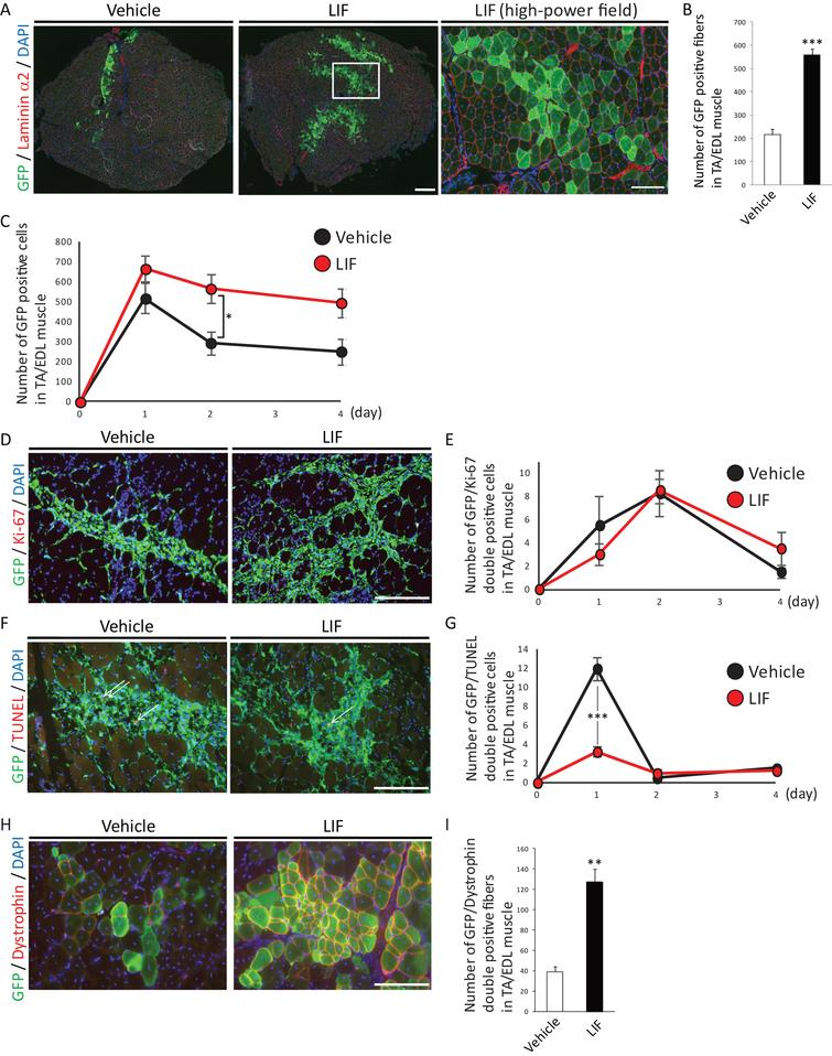LIF enhances transplantation efficiency of satellite cells. A) Representative immunohistochemistry of GFP-positive fibers in transplanted muscles at 2 weeks after transplantation. Low-power field images were shown in left and center. Scale bar: 300 μm. High-power field image was shown in right. Scale bar: 100 μm. Right image was identical to the boxed area in center image. B) Quantitative analysis for the number of GFP-positive fibers surrounded by laminin α2 at 2 weeks after transplantation. n = 5. C) Quantitative analysis for the number of GFP-positive cells at 1, 2 or 4 days after transplantation. D) Representative immunohistochemistry of GFP/Ki-67-double positive cells in transplanted muscles at 2 days after transplantation. Scale bar: 100 μm. E) Quantitative analysis for the number of GFP/Ki-67-double positive cells. n = 4. F) Representative immunohistochemistry of GFP/TUNEL-double positive cells in transplanted cells at 1 day after transplantation. Arrows indicated GFP/TUNEL-double positive cells. Scale bar: 100 μm. G) Quantitative analysis for the number of GFP/TUNEL-double positive cells. n = 4. H) Representative immunohistochemistry of GFP/Dystrophin-double positive fibers in transplanted muscles. Scale bar: 100 μm. I) Quantitative analysis for the number of GFP/Dystrophin-double positive fibers. n = 4. All GFP-positive, GFP/Ki-67-double positive, GFP/TUNEL-double positive or GFP/Dystrophin-double positive cells or fibers in TA/EDL muscles were counted. **P < 0.01 ***P < 0.001 by Student's t-tests. Error bars indicate standard error of mean.