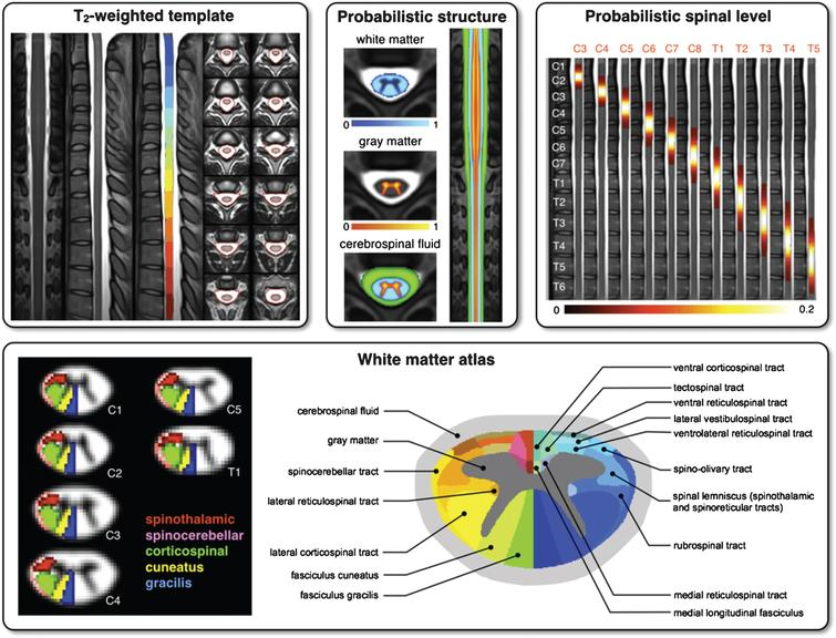 Template and atlases included in SCT: T2-weighted template with vertebral levels and spinal-cord segmentation (top left), probabilistic atlases of white/gray-matter (top center), probabilistic map of spinal levels according to vertebral levels (top right) and white-matter atlas (bottom).