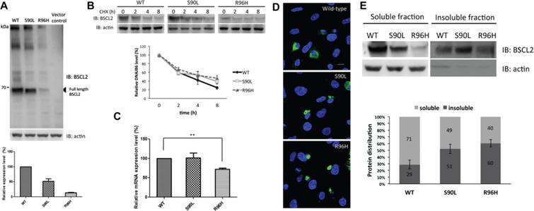 Fig. 2. In vitro expression of BSCL2 and the characterization of wild-type (WT) and mutant seipin proteins in HEK293T cells.