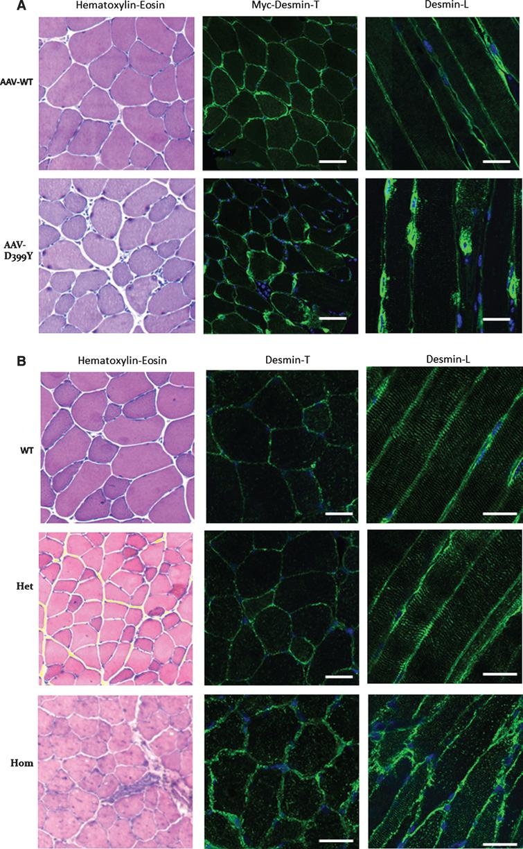 Altered desmin subcellular distribution in skeletal muscle tissue. A- 11-week-old mice (C57bl6J) were injected in tibialis anterior (TA) with associated-adeno-virus (AAV) encoding Myc-tagged wild-type (WT) or D399Y desmin. One month later, TA were extracted and frozen, and Myc immunostaining on transverse or longitudinal cryosections was performed to detect exogenous desmin. D399Y shows a perinuclear accumulation related to human desmin aggregation observed in patients. Scale bar = 20 μm. B- DesKI-R405W mice (homologous to R406W mutation in human, C57bl6N) were analyzed at 3 months old. Briefly, TA were extracted and frozen and desmin immunostaining was performed on transverse or longitudinal cryosections to detect endogenous desmin in homozygous (Hom), heterozygous (Het) or wild-type (WT) mice. A typical desminopathy staining pattern with predominantly subsarcolemmal and also sarcoplasmic desmin-positive protein aggregates can be observed in homozygous tissue. Moreover, a regular cross-striated desmin pattern is present in WT mice, and mainly preserved in HET mice, whereas Hom mice show an altered striation and fiber shapes. Scale bar = 20 μm.