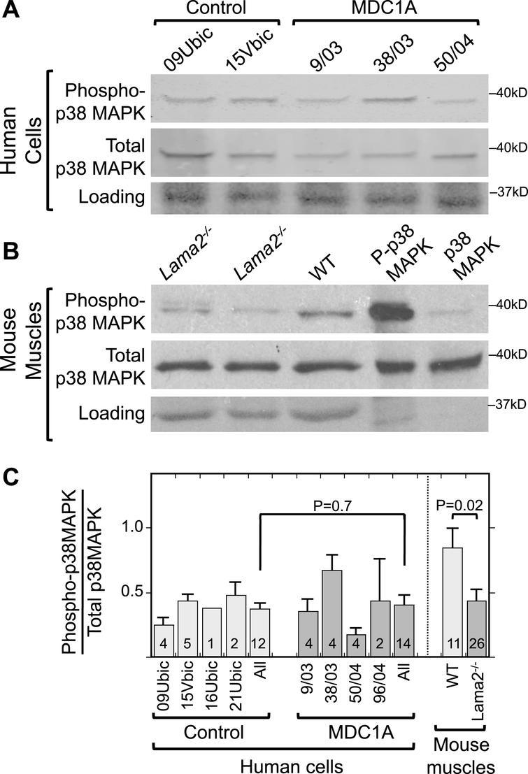Increased phosphorylation of p38 MAPK is not associated with laminin-alpha-2-deficiency. A. Immunoblots of lysates of 4d differentiated human myogenic cell lysates with antibodies specific for phospho-p38 MAPK (P-p38 MAPK) and total p38 MAPK showed that differentiated cultures of laminin-α2-deficient (MDC1A) and healthy control myogenic cells had similar levels and ratios of P-p38 MAPK to total p38 MAPK. One representative immunoblot is shown, see panel C for quantitation. 70μg of protein per lane. B. Similar immunoblots of mouse muscle lysates showed that phosphorylation of p38 MAPK tended to be decreased in quadriceps muscles from Lama2–/– mice compared to muscles from wild-type mice. One representative immunoblot is shown, see panel C for quantitation. 30μg of protein per lane. Loading control = Ponceau S stain. Lanes 4 and 5 included purified phospho-MAPK and MAPK proteins to serve as positive controls for antibody specificity and thus showed little or no staining in the loading controls. C. Quantitative densitometry of immunoblots showed that the P-p38 MAPK/Total p38 MAPK ratio was decreased at P = 0.02 in Lama2–/– compared to wild-type mouse muscles, whereas the ratio was similar in MDC1A compared to healthy control myogenic cells. Identities of individual control and MDC1A donor cells are as indicated. All = average of results from cell cultures of all healthy control (light gray) or all MDC1A (dark gray) donors. Error bars = SE. P values from unpaired T-test of all control vs. all laminin-α2-deficient samples with n as indicated.