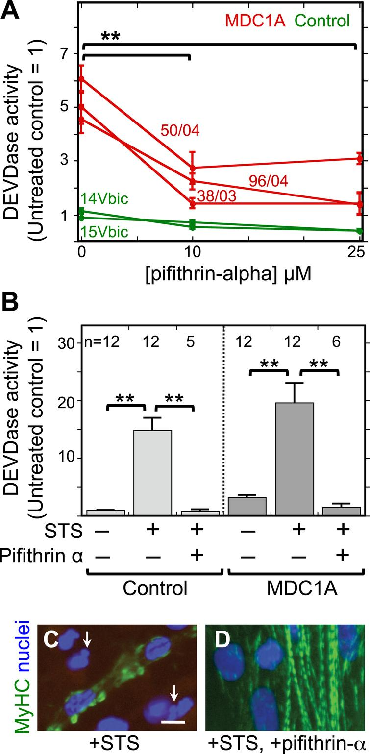 The p53 inhibitor pifithrin-alpha decreased both spontaneous and staurosporine-induced caspase activity in MDC1A myogenic cells. A. Cultures of MDC1A (red lines) and healthy control (green lines) myogenic cells were incubated with pifithrin-alpha at the indicated concentrations and assayed for caspase 3/7 (DEVDase) enzymatic activity after four days in differentiation medium. Caspase values were normalized so that the average of the untreated healthy controls = 1. Error bars = SE; **P < 0.01 by ANOVA to compare values at 0, 10μM, and 25μM; n = 3 for cells of each individual donor. B. As indicated, cells were either left untreated or treated with 25μM pifithrin-alpha as in panel A either without staurosporine (STS) or with staurosporine at 1μM for the final 4.5 h prior to harvest. Pifithrin-alpha treatment reduced both spontaneous and staurosporine-induced caspase activity in MDC1A cultures. Error bars = SE; **P < 0.01 by ANOVA; n as indicated. Healthy control cells included 15Vbic, 16Ubic, and 21Ubic. MDC1A cells included 38/03, 50/04, and 96/04. C, D. Treatment with staurosporine (+STS) at 1μM for 4.5 h hours generated morphological abnormalities of nuclei (blue) including blebbing and fragmentation (e.g., arrows in panel C) and disrupted the striated organization of myosin heavy chain (MyHC, green) in MDC1A (50/04) cultures (panel C). However, these staurosporine-induced changes were largely eliminated when the p53 inhibitor pifithrin-alpha (+pifithrin-α) at 25μM was included in combination with staurosporine (panel D). Bar in panel C = 20μm.