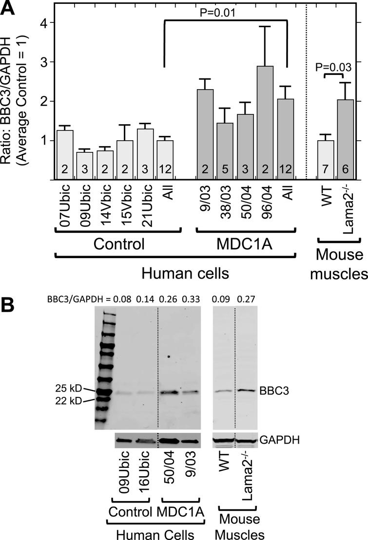 Laminin-α2-deficient human myogenic cells and mouse muscles show increased levels of the p53-regulated BBC3 protein. A. Expression of BBC3 (PUMA) was increased both in differentiated MDC1A compared to healthy control myogenic cell cultures and in Lama2–/– compared to wild-type control mouse quadriceps muscles. Results are presented as the BBC3 to GAPDH ratio determined from densitometry of immunoblots. Individual cell donors are indicated. All = average of results from cell cultures of all healthy control (light gray) or all MDC1A (dark gray) donors as indicated. Error bars = SE; P values from T-test of all control vs. all laminin-α2-deficient samples with n as indicated. B. Representative full-length immunoblots demonstrating specificity of BBC3 antibody for human cell culture (left) and mouse muscle (right) samples as indicated. All cell samples were analyzed on one immunoblot and all mouse samples were also analyzed on one immunoblot, but lanes were re-arranged for presentation as shown by the dotted lines. The separate lower immunoblots show the GAPDH loading control band used for densitometry. The BBC3/GAPDH ratio determined by densitometry is shown at the top of each lane. MW = molecular weight standards.