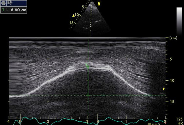 Diaphragm M mode ultrasound imaging from an anterior subcostal view for the measurement of the hemi diaphragm motion during inspiration. Note the normal right hemi-diaphragmatic excursion reaching 66 mm during deep inspiration.