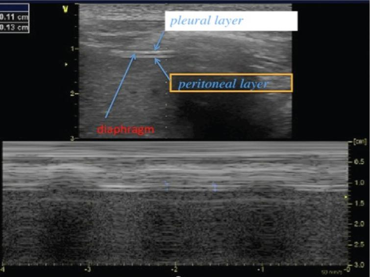 2D mode ultrasound imaging from the zone of apposition for the measurement of diaphragm thickness. The diaphragm is located beneath the intercostal muscles and we can distinguish three layers: a hypo-echogenic thick layer (diaphragm muscle) surrounded by two hyper-echogenic lines (pleural layer and peritoneal layer). Here is a reduced diaphragm thickness (1.3 mm) in a patient with Duchenne muscular dystrophy.