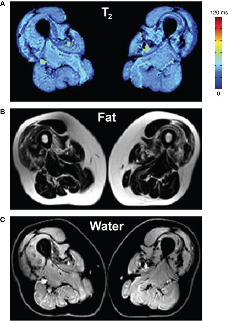 Bi-component extended phase graph (EPG) approach to simultaneously quantify the muscle water T2 and fat fraction. (A) Water T2 map. (B) Fat image. (C) Water image. Figure adapted from Marty et al. with permission [32].