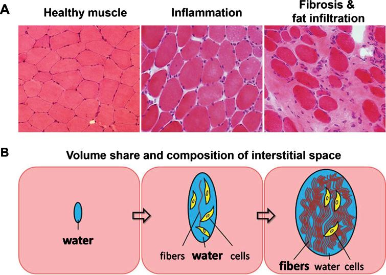 (A) Histological sections of healthy muscle, inflamed muscle, and heavily fat infiltrated and fibrotic muscle tissue. (B) Schematic of changes in volume share and composition of the interstitial space due to inflammation and as a consequence of fibrosis and fat infiltration.