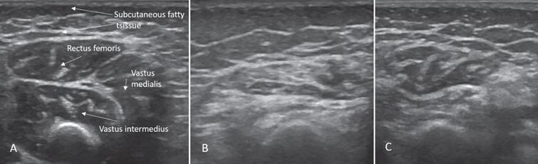 Sonographic findings of quadriceps in case 1: (A) Age 2 months: normal echogenicity and clearly visible internal septa. (B) Age 14 months, 6 months after onset of disease: a pathologic increase in background echogenicity in comparison to subcutaneous fat tissue and less definable intramuscular septa. (C) Age 17 months, after 8 months of nusinersen therapy: partial recovery with increase in volume and normalisation of echogenicity in the rectus femoris.