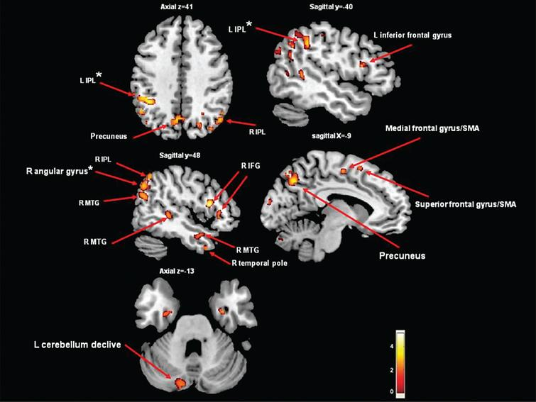 Areas of gray matter atrophy derived from a voxel-based morphometric direct comparison between PD patients with FOG (n=22) and PD patients without FOG (n=22). The GM maps were analyzed using analysis of variance (ANOVA) as implemented in SPM5. The model was adjusted for age and disease duration. The results are superimposed in representative sagittal and axial sections of a customized gray matter template, at a threshold of p< 0.005, uncorrected cluster size >50. *indicates p< 0.05, cluster level corrected. Note that if we applied FWE correction on the contrasts maps, the group differences were no longer significant. Significantly lower values of GM in the freezers compared to the non-freezers were observed in the precuneus, frontal gyrus/supplementary motor area, cerebellum declive and middle temporal gyrus (p< 0.005, uncorrected). In addition, in the left IPL and the right angular gyrus, significant differences were found when correcting for multiple comparisons (p< 0.015, cluster level corrected). IFG=inferior frontal gyrus; SMA=supplementary motor area; IPL=inferior parietal lobe; MTG=middle temporal gyrus.