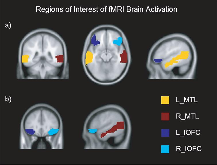 Regions of Interest of fMRI brain activation in axial, coronal and sagittal view. Montreal Neurological Institutes (MNI) template coordinates for a): x=–50.2 y=–40.8 z=–13.5. MNI for b): x=53.7 y=31 z=–12.5. L=Left; R=Right; MTL=Medial Temporal Lobe; IOFC=Inferior Orbitofrontal Cortex.