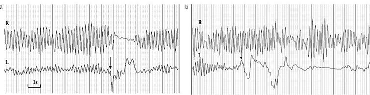 Accelerometry recordings of the 'pointing test' performed with the left hand. (a) A truly fast grasping movement of the left hand results in a transient arrest of right-sided hand tremor. However, during a slower grasping movement, as depicted in (b), the right hand tremor continues with lower amplitude. R = right hand, L = left hand, vertical arrow indicates onset of grasping movement. Vertical solid lines indicate 1 second; recording parameters: 20 mm/sec and 30 mV/cm.