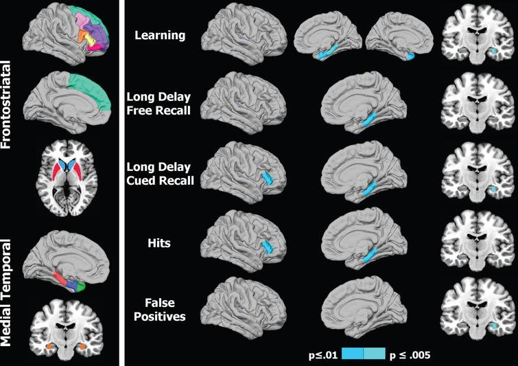 Regional volumes of interest and their association with memory in Parkinson's patients. 1) Left panel: Colored areas designate regions of interest (ROI) in the frontostriatal and medial temporal systems. ROIs on sagittal surfaces are displayed for one hemisphere, but were analyzed for homologous areas of both hemispheres. The caudate/putamen and the hippocampus are respectively shown on axial and coronal views. 2) Right panel: Right hemisphere cortical (lateral/medial sagittal surfaces) and hippocampus (coronal view) volumes that significantly correlated with various memory measures. For CVLT learning (top row), the left hemisphere medial surface displays the significant correlation with the temporal pole. The p value for correlation coefficients is designated by the color bar; p≤0.01 (dark blue) and p≤0.005 (light blue).