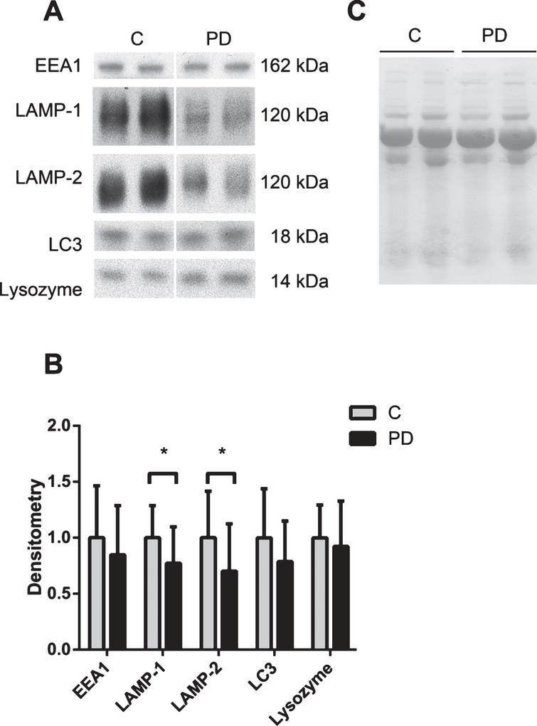 The lysosomal network proteins LAMP-1 and LAMP-2 are downregulated in the CSF of PD patients. A) Representative samples from one Western blot of CSF from controls (C) and Parkinson's disease (PD) patients analyzed for the lysosomal network proteins EEA1, LAMP-1, LAMP-2, LC3 and lysozyme. B) Mean densitometric quantification of the scanned Western blots from C (n=18) and PD (n=18) patients. The protein levels are normalized to a standard CSF sample loaded on each gel. C) Equal sample loading was verified by Ponceau S staining of total protein in each lane on the membranes. The bars represent the mean±SD, *p<0.05.