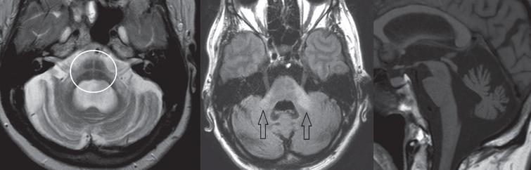 Subject diagnosed with the cerebellar form of MSA. Left image, T2-weighted transversal sequence demonstrating pontine atrophy with the 'hot cross bun' sign (encircled). Middle image, FLAIR hyper-intense signal intensity changes of the middle cerebellar peduncles (arrows). Right image, T1-weighted sagittal plane demonstrating pontocerebellar atrophy.