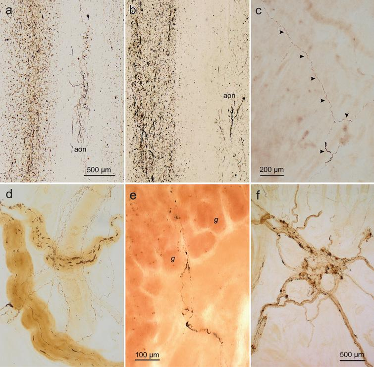 (a-f) Lewy pathology in the olfactory bulb and gastric Auerbach plexus visualized in α-synuclein immunohistochemistry (100 μm polyethylene glycol sections). a. Olfactory bulb and anterior olfactory nucleus (aon) (50-year-old male, stage 2). The dorsal motor nucleus of the vagal nerve and intermediate reticular zone in the medulla also contained Lewy neurites and Lewy bodies. Presumably, this non-demented individual would have gone on to develop PD had he lived longer. b. Olfactory bulb and aon (63-year-old female, stage 2). Much less severe pathology was also present in the dorsal motor nucleus of the vagal nerve, intermediate reticular zone, nucleus raphes magnus, and locus coeruleus. c. Tangential section from the gastric cardia showing Lewy neurites (arrowheads, same case as in b). Again, it is presumed that, had she lived longer, this cognitively intact individual would have been diagnosed with PD. d. Intramural Lewy pathology in a section cut tangentially to the surface of the gastric cardia. Also visible (in background) is a large, branching blood vessel lined by thread-like immunoreactive sympathetic nerve fibers. In addition to the occurrence of Lewy neurites and Lewy bodies in the dorsal motor nucleus of the vagal nerve, intermediate reticular zone, nucleus raphes magnus, locus coeruleus, and substantia nigra, some nigral cell loss was also evident in the pars compacta (65-year-old male, stage 3). e. Detail of Lewy neurites in PD penetrating the muscularis mucosa and reaching upwards into the lamina propria (mucosa) where they extend between the gastric glands (g) in a perpendicularly cut section (69-year-old female, stage 4). f. Tangential section from the gastric cardia of a PD patient with disease duration of 11 years (78-year-old female, stage 5). Scale bars: a is valid for b; c also applies to d. Stages in parentheses refer to neuropathological stages 1–6 of sporadic PD. Micrographs e, f reproduced with permission from [70].